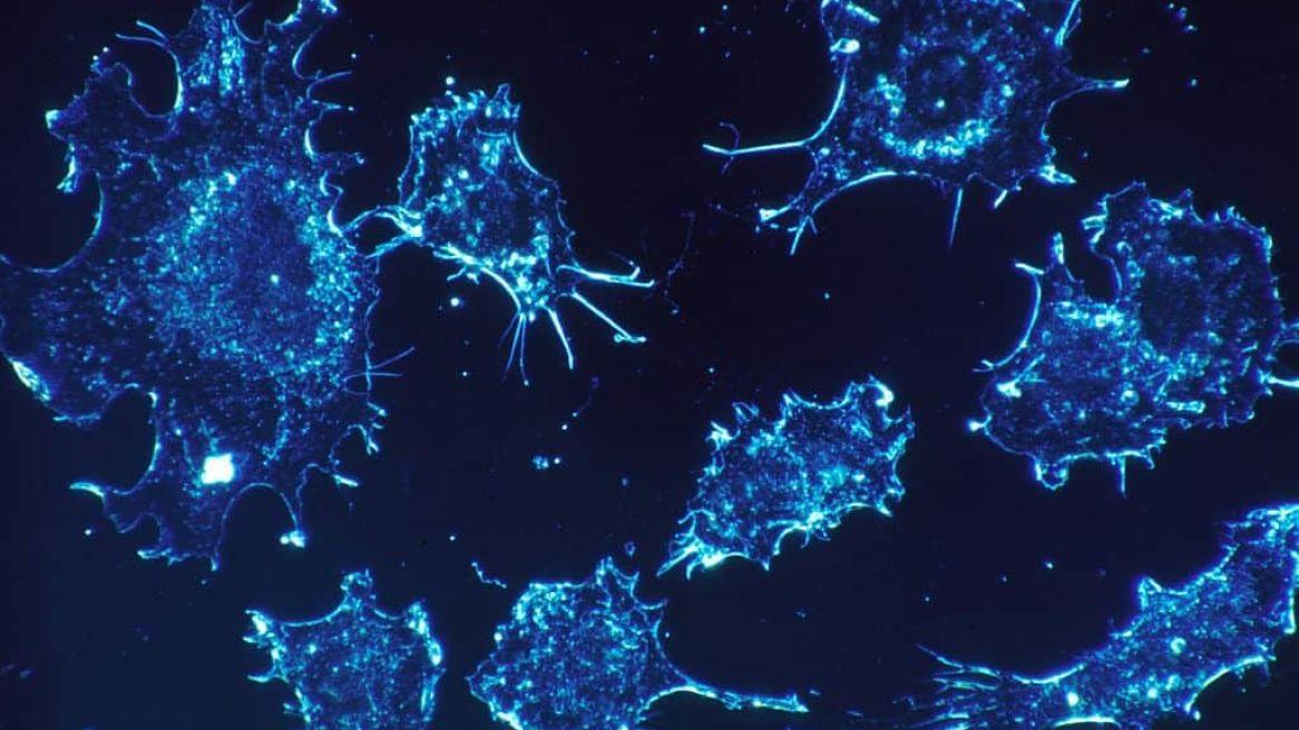 Cancer Cells